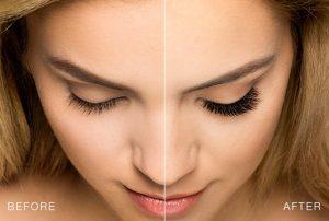 eyelashes careprost